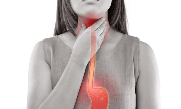 kobieta z problemem refluksu żołądkowego