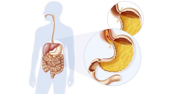 wizualizacja refluksu żołądkowego u człowieka